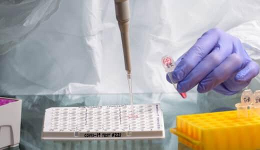 PCR検査キットが安いおすすめクリニック5選|自宅で簡単・即日配送・高精度