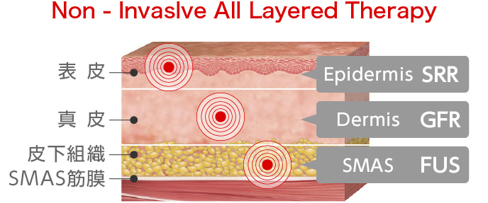 図:Non - Invaslve All Layered Therapy
